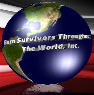 CLICK TO ENTER BURN SURVIVORS THROUGHOUT THE WORLD